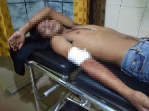 Tiga Warga Desa Mislak Terkapar Bersimbah Darah